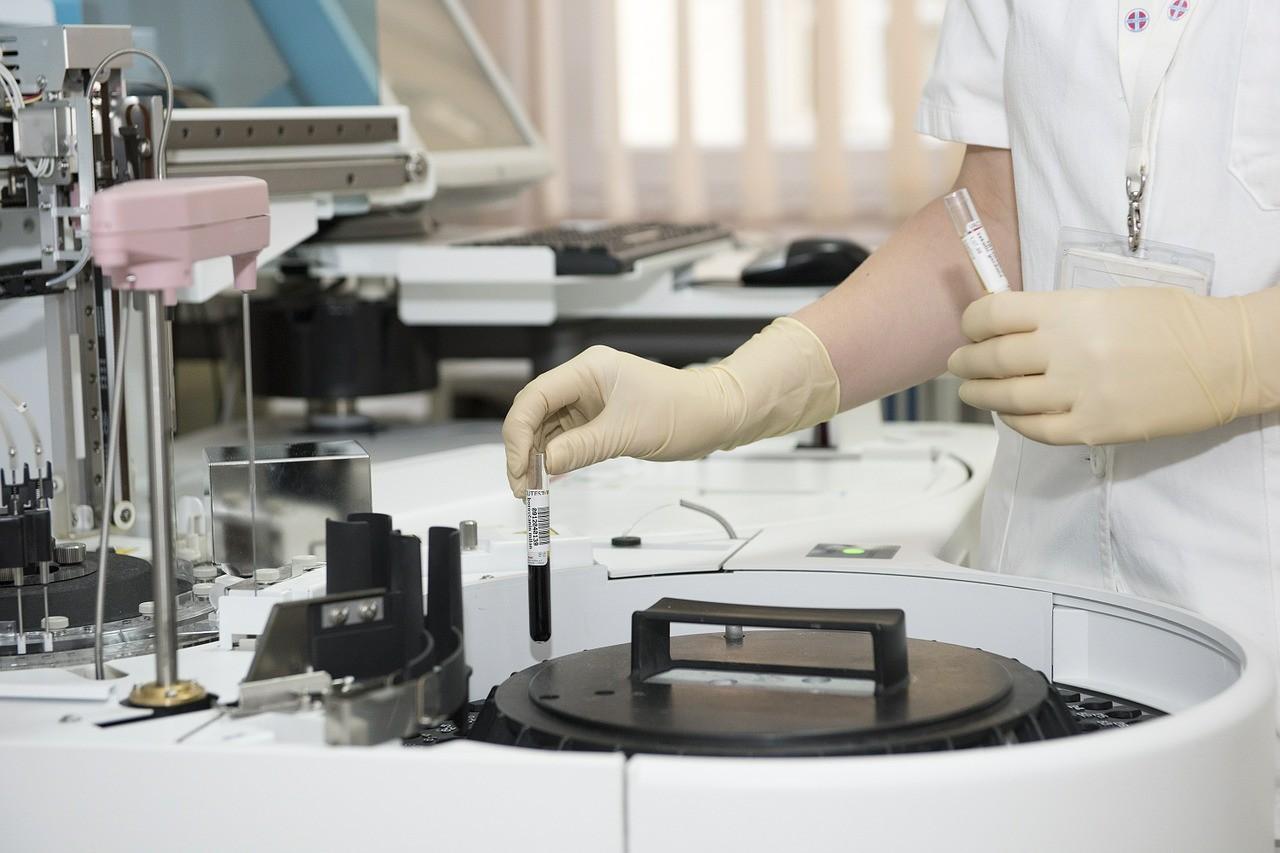 Infektológus: négyezer HIV-fertőzött nem tud betegségéről Magyarországon